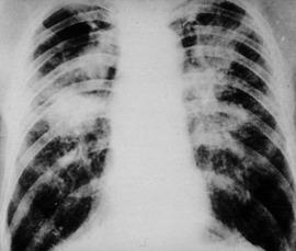 Signs and Symptoms of Chronic Beryllium Disease (CBD) - Madeksho Law