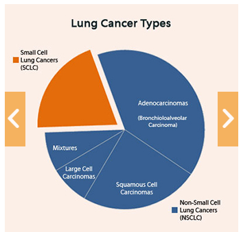 Types Of Lung Cancer Nsclc Vs Sclc