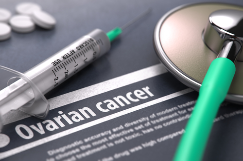 Ovarian Cancer Are You At Risk Take The Quiz