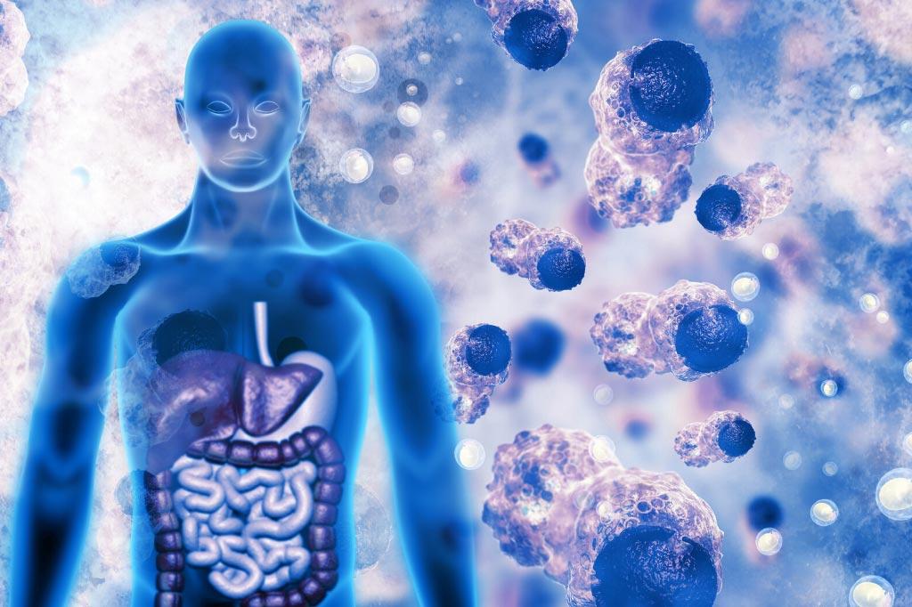 Zantac Ranitidine And Cancer Madeksho Law